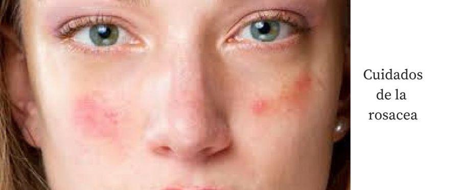 cuidado-rosacea-cosmetica-natural-geacosmetics
