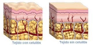 piel celulitis