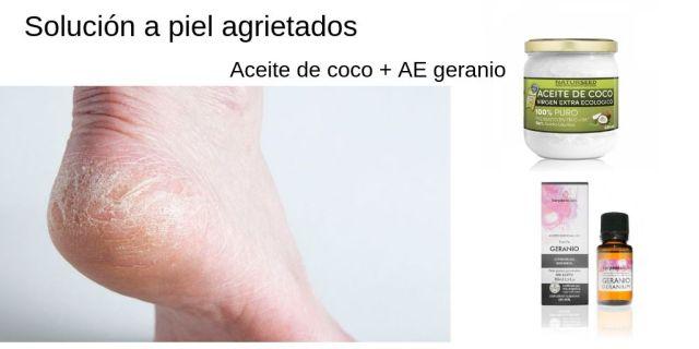 solucion-pies-agrietados-GEAcosmetics